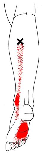 calf-trigger-point