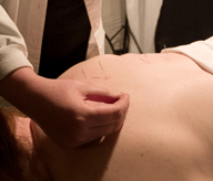 acupuncture on upper back